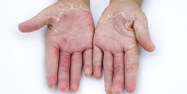 scaly skin on hands